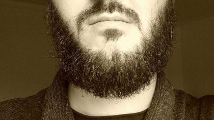 Batteri molto piu numerosi nella barba che nel pelo di cani e gatti
