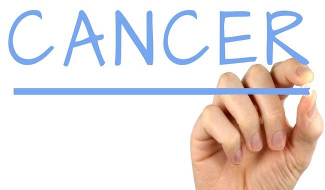 Cancro al pancreas aumentano i tassi di mortalita
