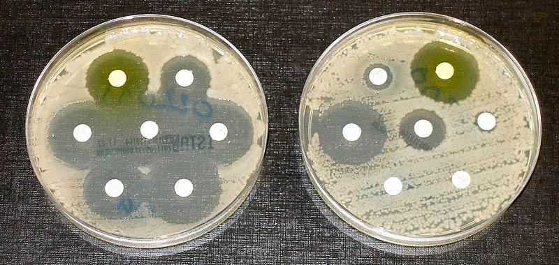 Super batteri In arrivo i super antibiotici