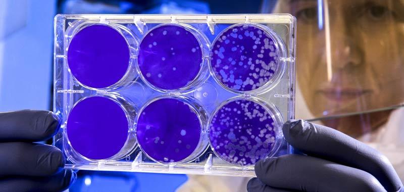 Coronavirus Possibile una re-infezione da virus