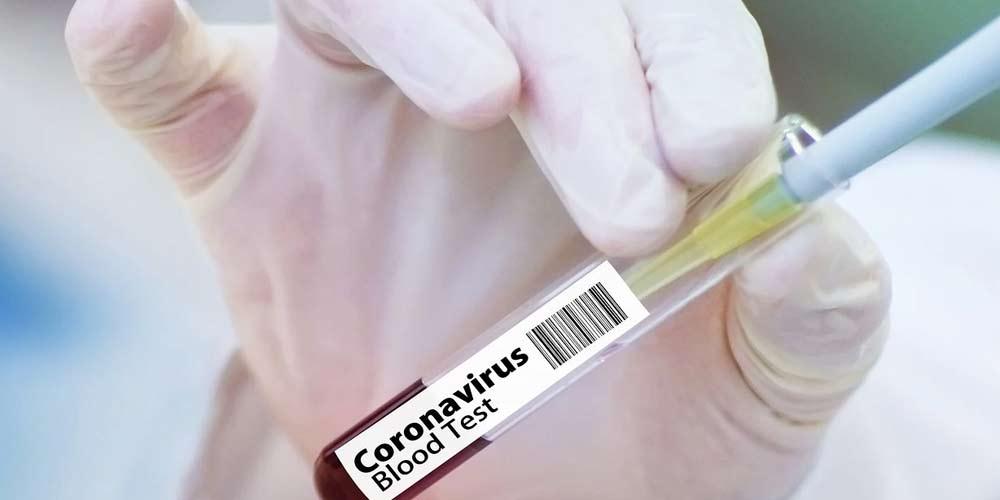Una Task Force avverte sulla diffusione del vaccino