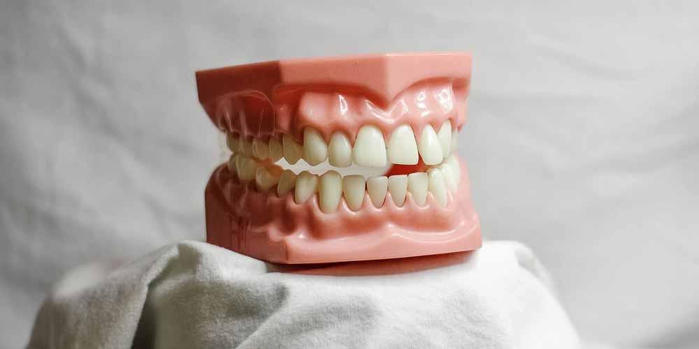 Quali sono i principali problemi dentali per i diabetici