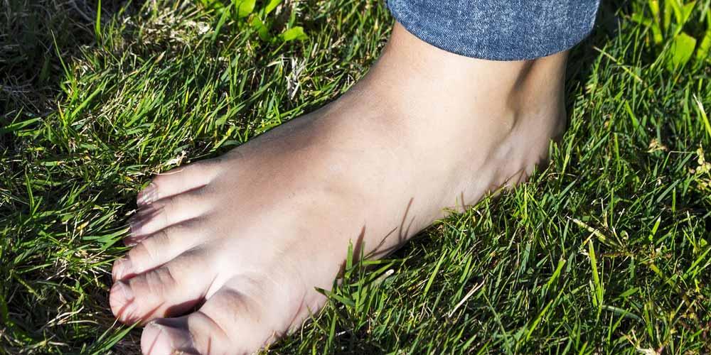 Covid-19 e immunità: Segnalati casi di congelamento dei piedi