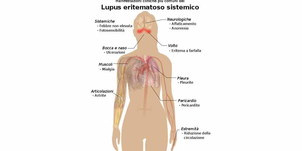 Lupus A volte eccessivo affaticamento puo essere un sintomo
