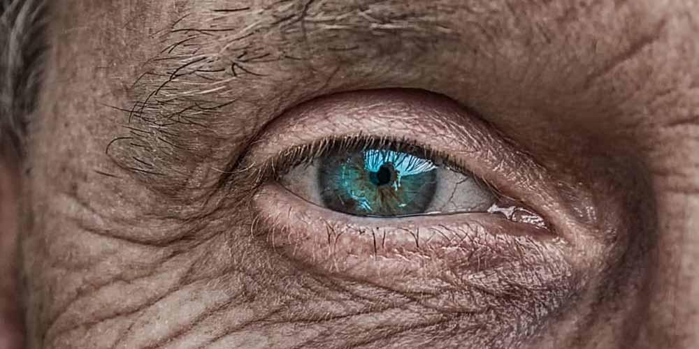Invecchiamento della pelle, perchè accade